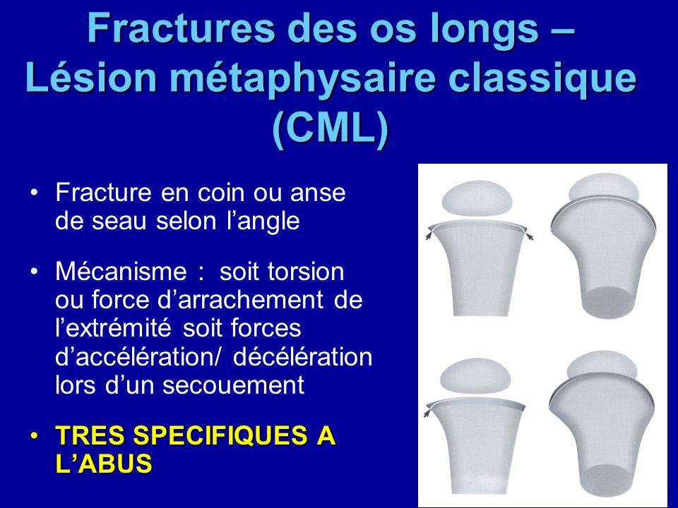 Fractures des os longs – Lésion métaphysaire classique (CML)