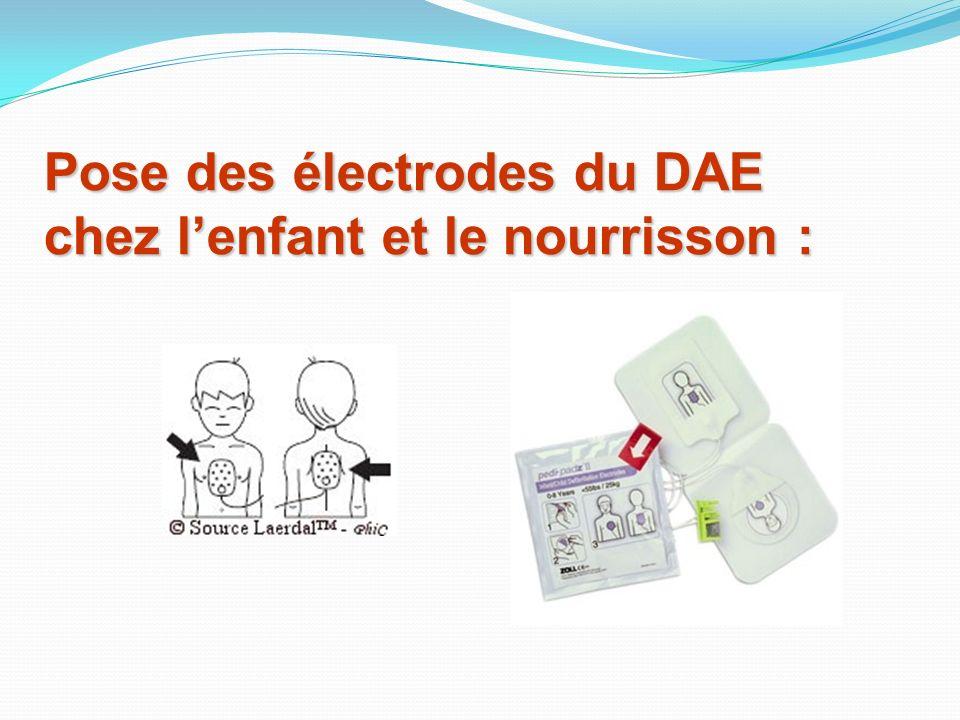 Pose des électrodes du DAE chez l'enfant et le nourrisson :