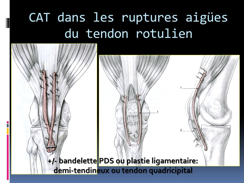 CAT dans les ruptures aigües du tendon rotulien