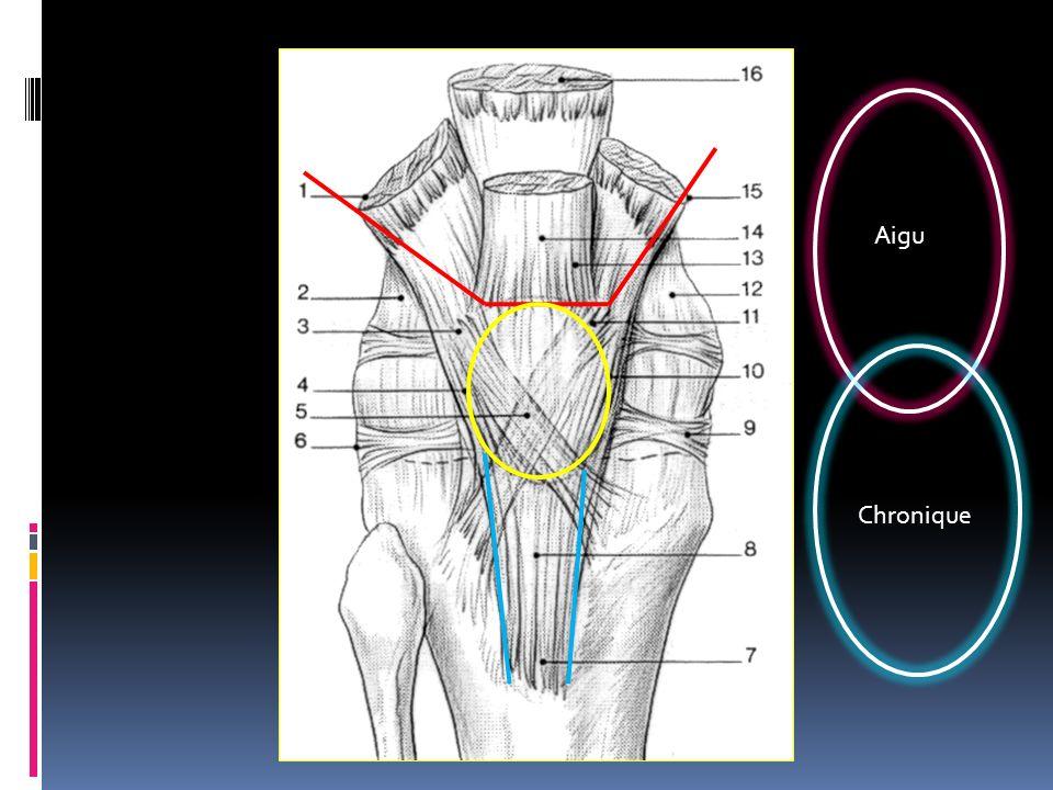 Aigu L'appareil extenseur est constitué par la continuité du tendon quadricipital, de la rotule, et du tendon rotulien.