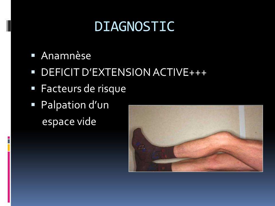 DIAGNOSTIC Anamnèse DEFICIT D'EXTENSION ACTIVE+++ Facteurs de risque