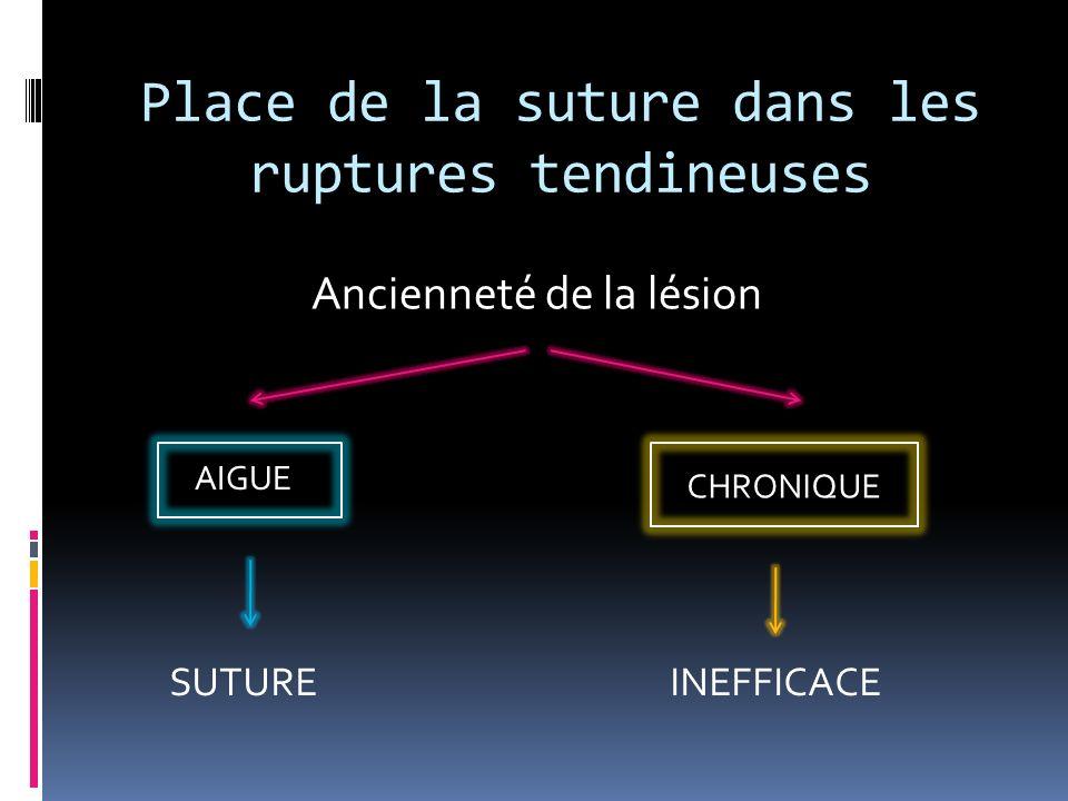 Place de la suture dans les ruptures tendineuses