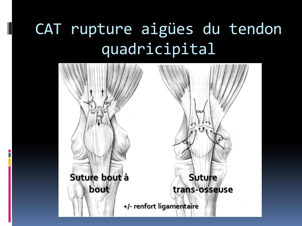CAT rupture aigües du tendon quadricipital