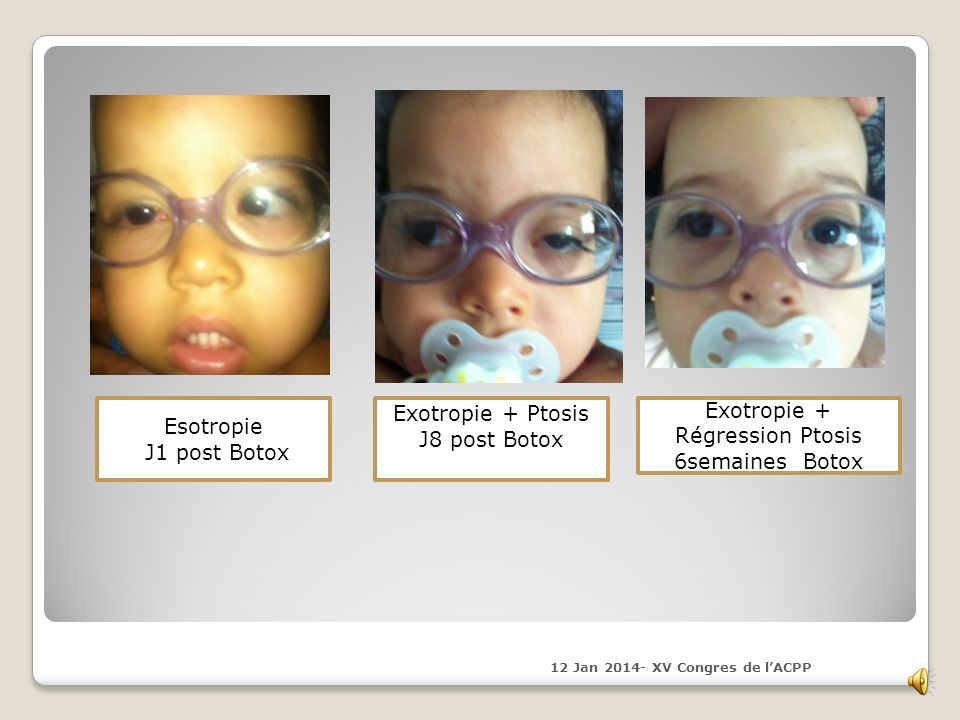 Exotropie + Ptosis Exotropie + Esotropie J8 post Botox