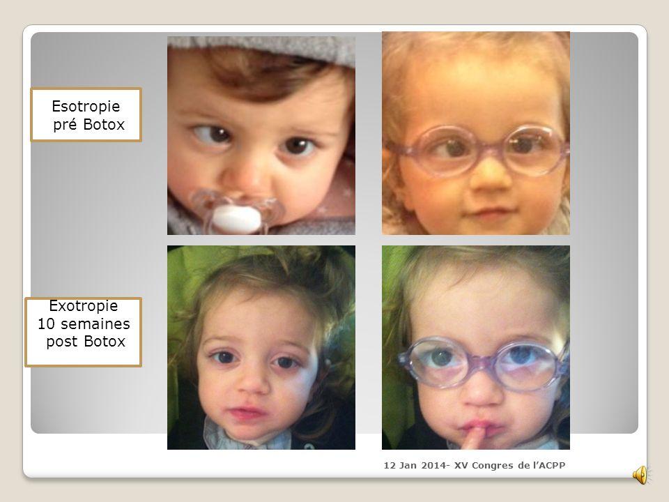 Esotropie pré Botox Exotropie 10 semaines post Botox