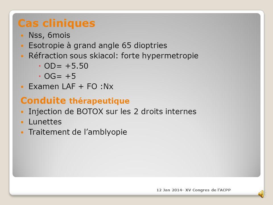 Cas cliniques Conduite thérapeutique Nss, 6mois