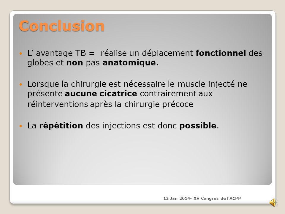 Conclusion L' avantage TB = réalise un déplacement fonctionnel des globes et non pas anatomique.