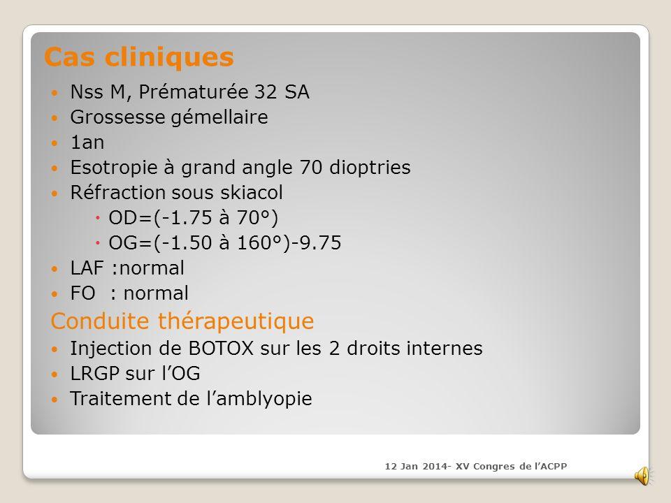 Cas cliniques Conduite thérapeutique Nss M, Prématurée 32 SA