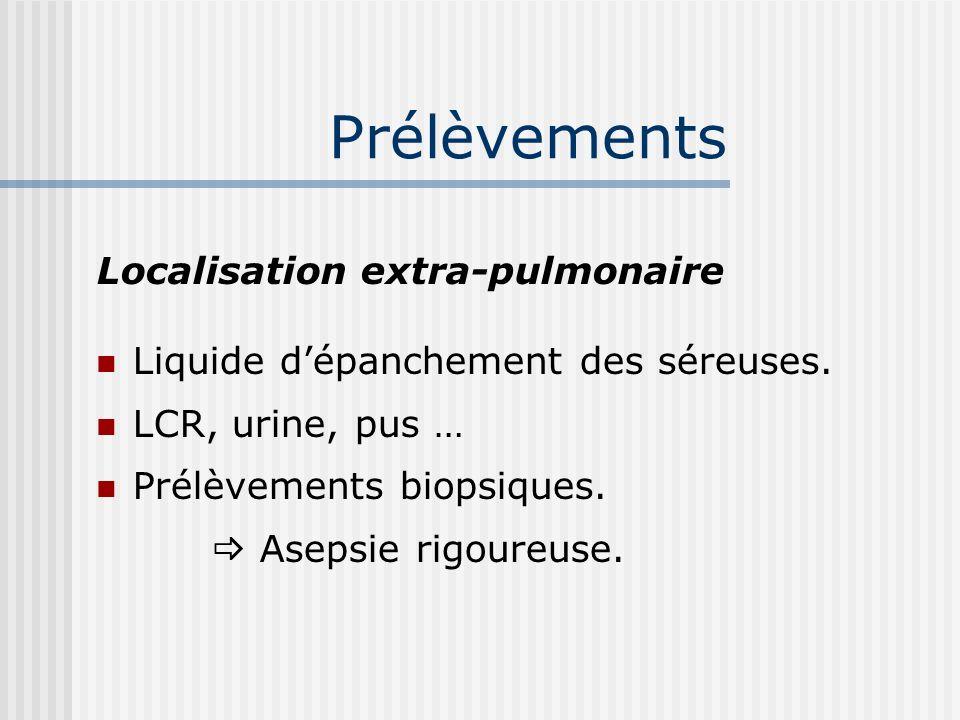 Prélèvements Localisation extra-pulmonaire