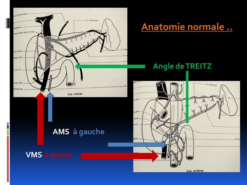 Anatomie normale .. Angle de TREITZ AMS à gauche VMS à droite