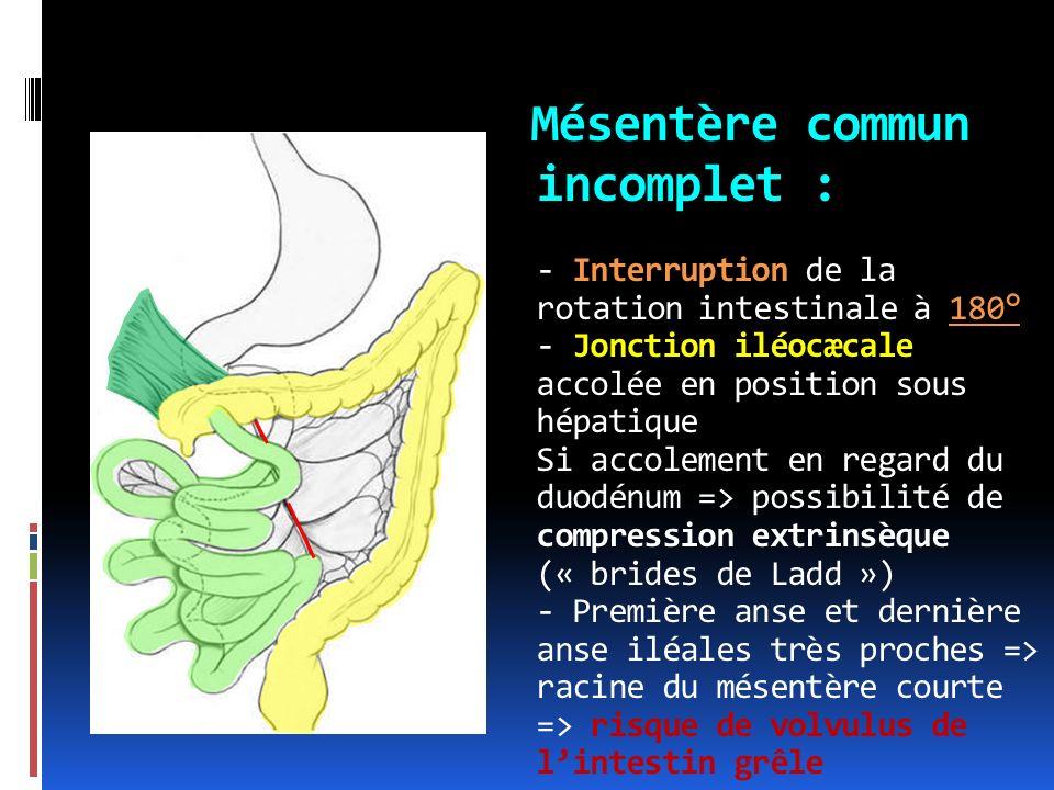 Mésentère commun incomplet : - Interruption de la rotation intestinale à 180° - Jonction iléocæcale accolée en position sous hépatique Si accolement en regard du duodénum => possibilité de compression extrinsèque (« brides de Ladd ») - Première anse et dernière anse iléales très proches => racine du mésentère courte => risque de volvulus de l'intestin grêle