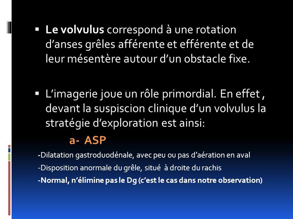 Le volvulus correspond à une rotation d'anses grêles afférente et efférente et de leur mésentère autour d'un obstacle fixe.