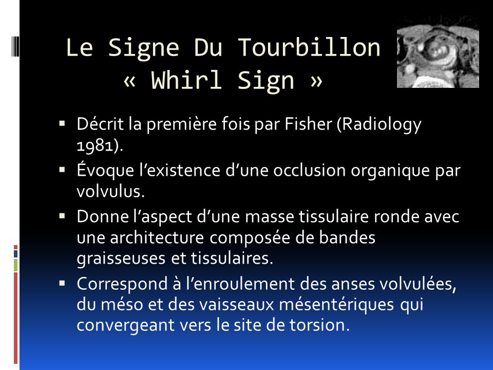 Le Signe Du Tourbillon « Whirl Sign »