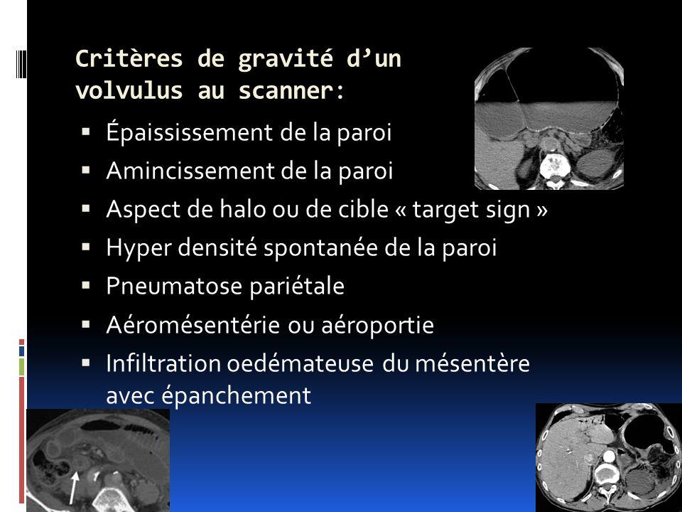 Critères de gravité d'un volvulus au scanner: