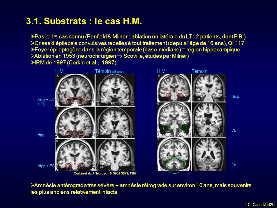 3.1. Substrats : le cas H.M. Pas le 1er cas connu (Penfield & Milner : ablation unilatérale du LT ; 2 patients, dont P.B.)