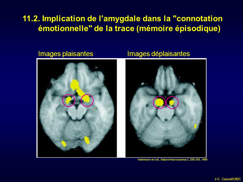 11.2. Implication de l amygdale dans la connotation