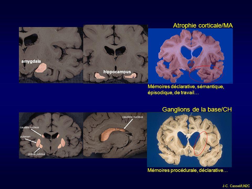 Atrophie corticale/MA