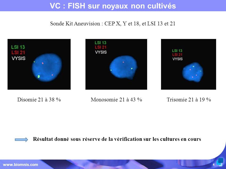 VC : FISH sur noyaux non cultivés