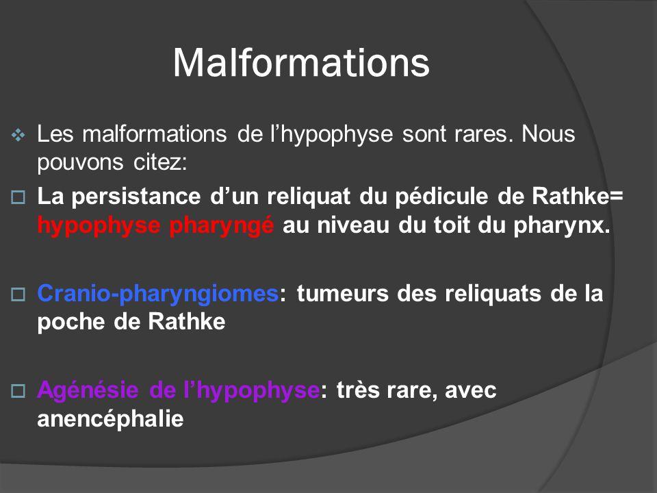 Malformations Les malformations de l'hypophyse sont rares. Nous pouvons citez: