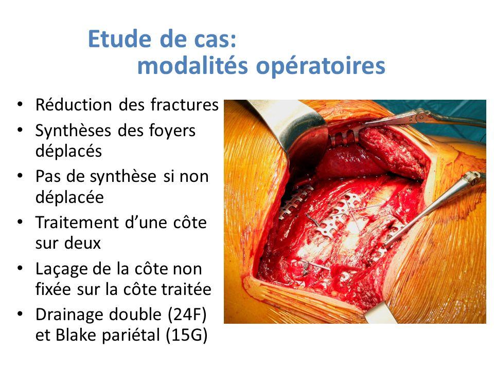 Etude de cas: modalités opératoires