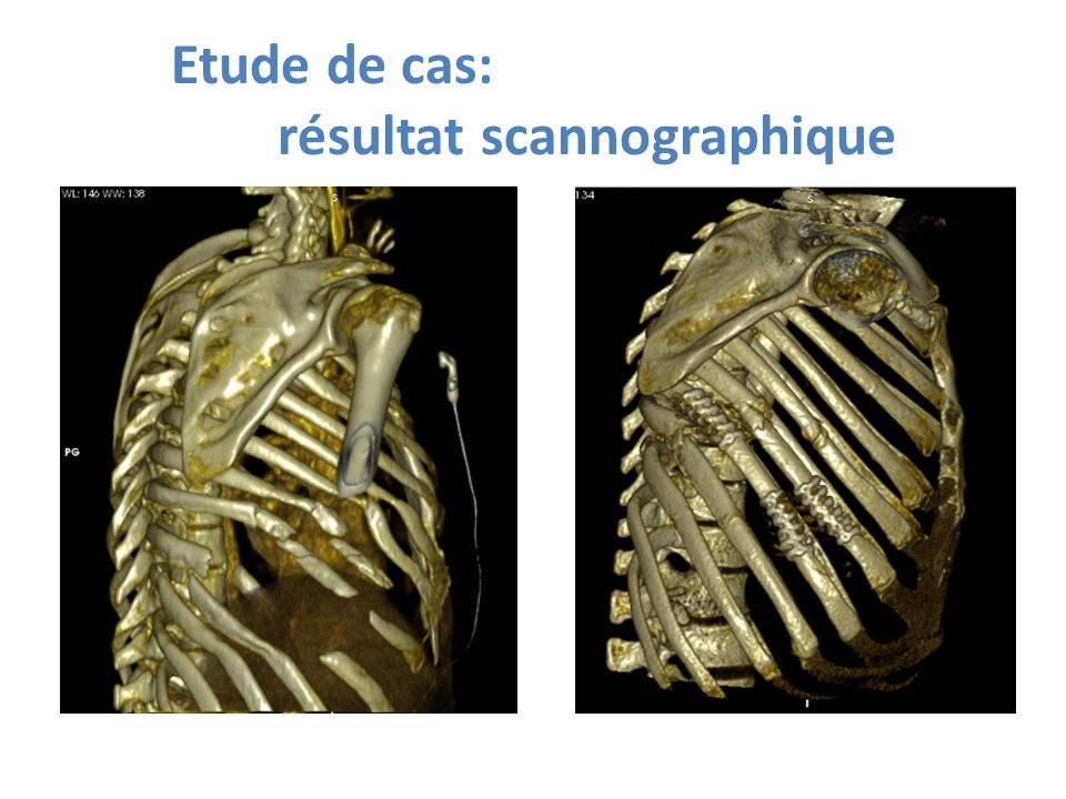 Etude de cas: résultat scannographique