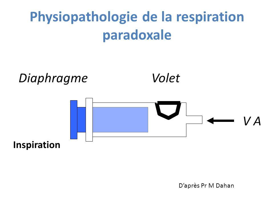 Physiopathologie de la respiration paradoxale