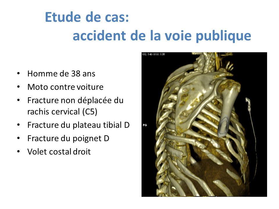 Etude de cas: accident de la voie publique