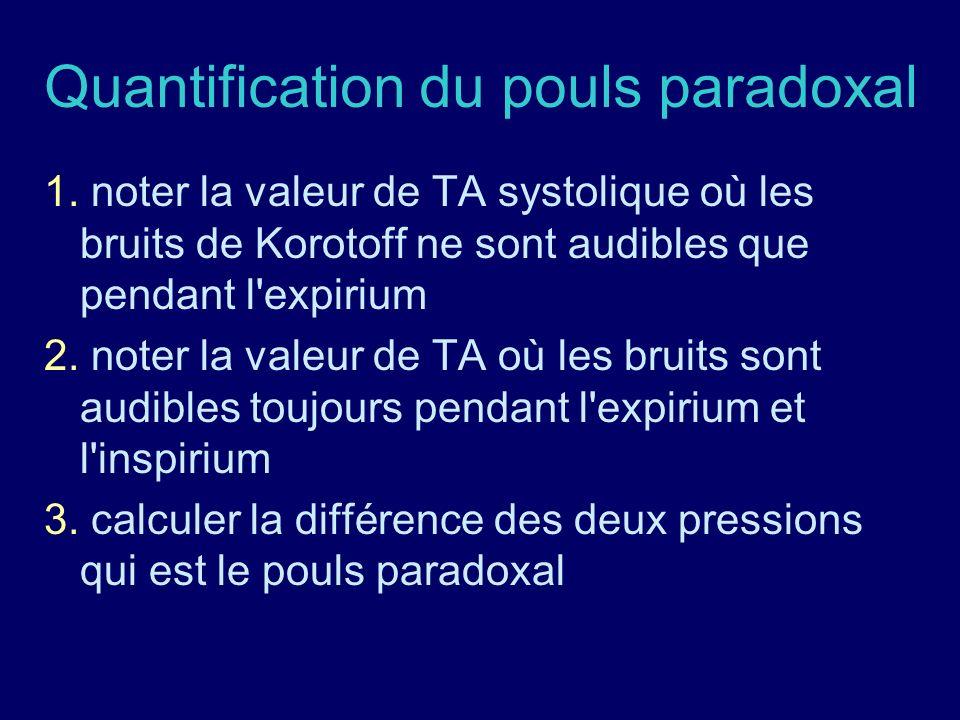 Quantification du pouls paradoxal