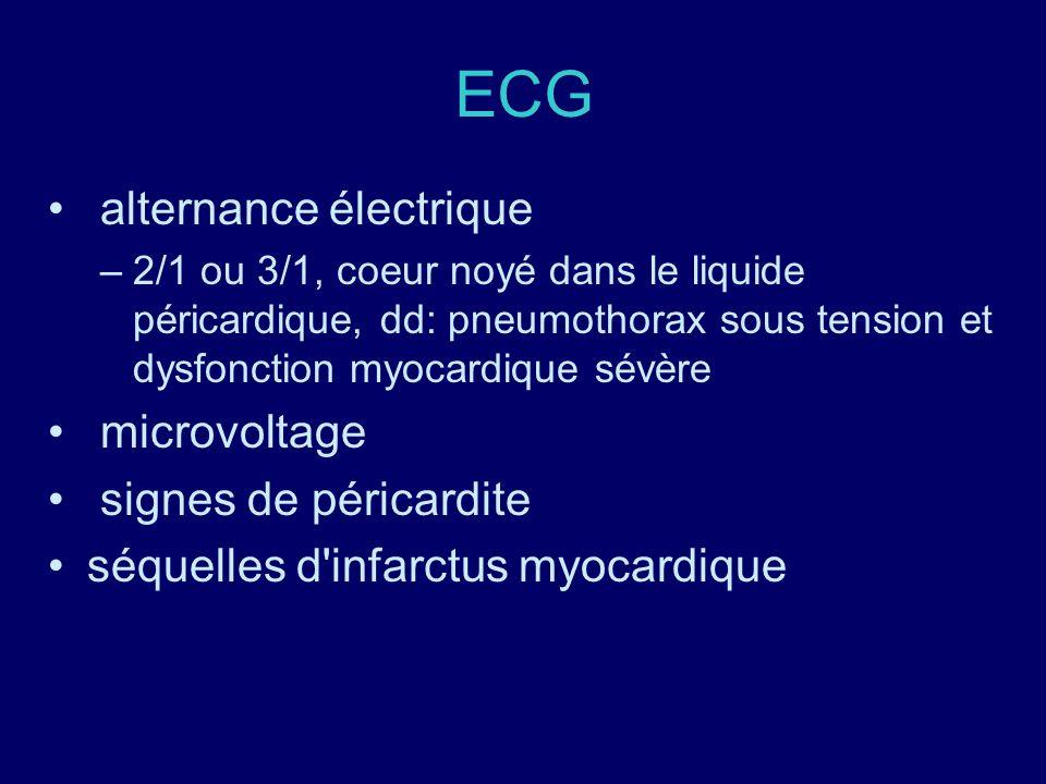 ECG alternance électrique microvoltage signes de péricardite