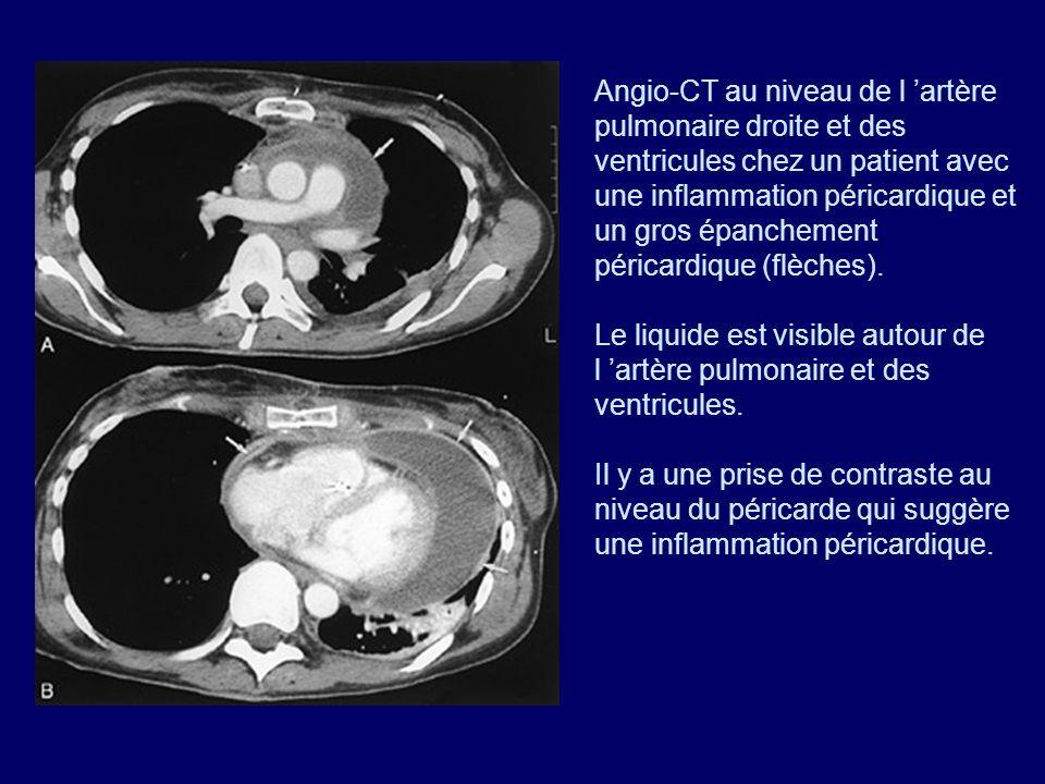 Angio-CT au niveau de l 'artère pulmonaire droite et des ventricules chez un patient avec une inflammation péricardique et un gros épanchement péricardique (flèches).