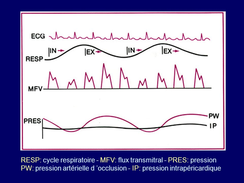 RESP: cycle respiratoire - MFV: flux transmitral - PRES: pression