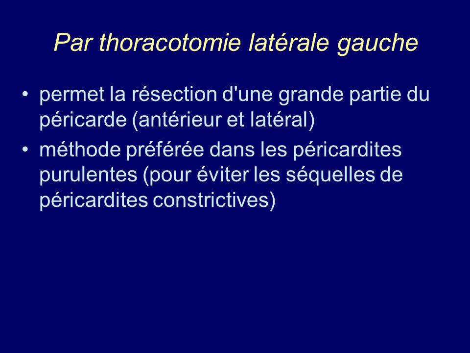 Par thoracotomie latérale gauche