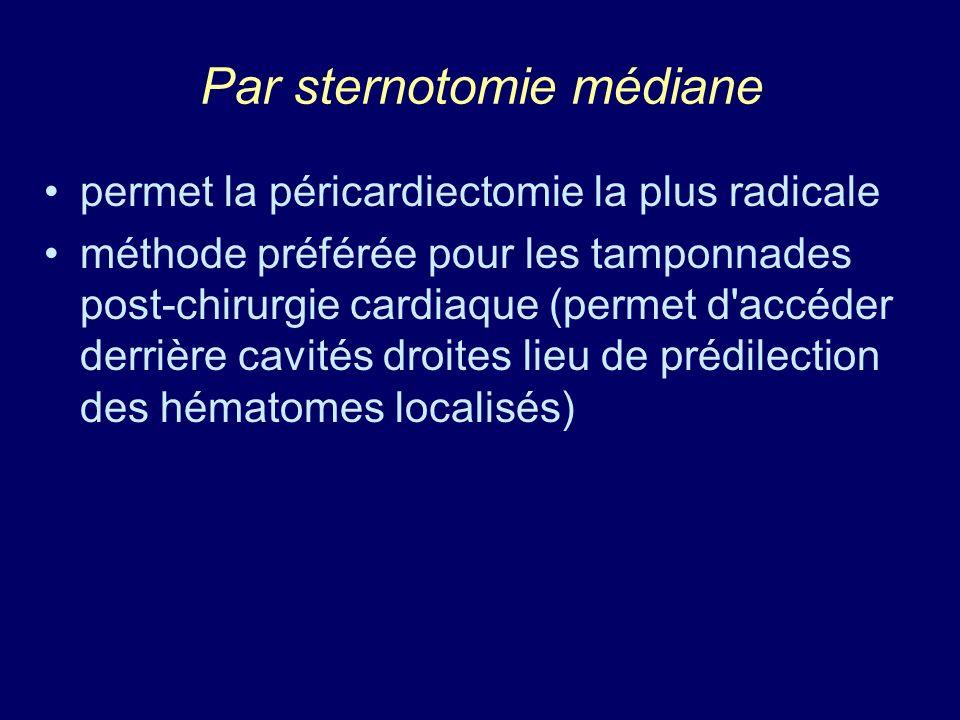 Par sternotomie médiane