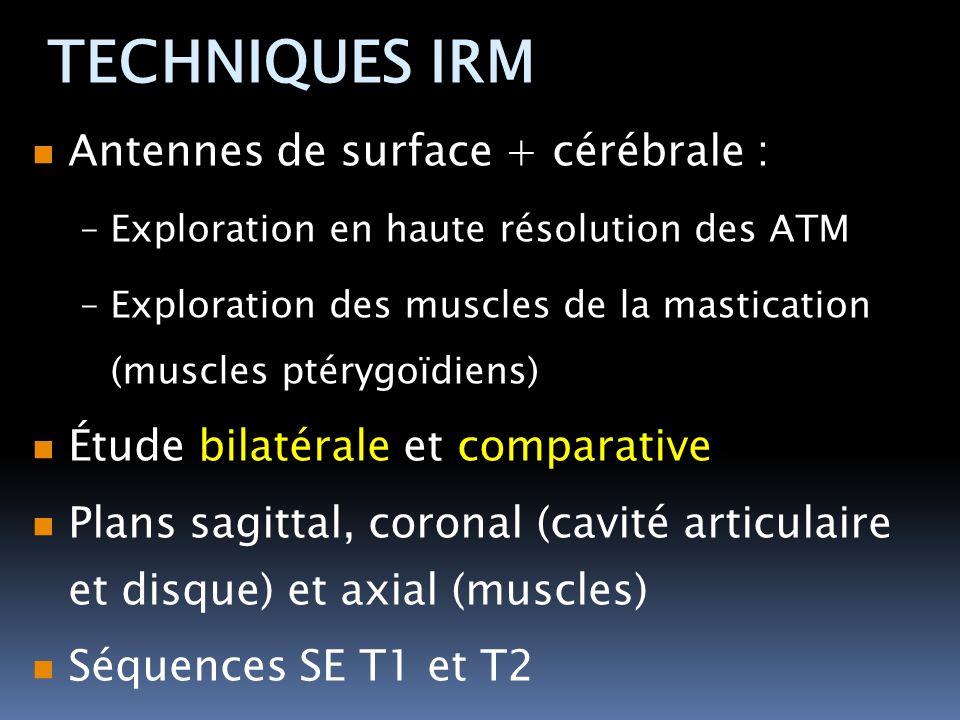 TECHNIQUES IRM Antennes de surface + cérébrale :