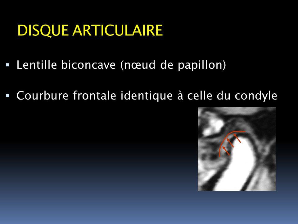 DISQUE ARTICULAIRE Lentille biconcave (nœud de papillon)