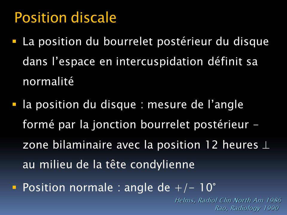 Position discale La position du bourrelet postérieur du disque dans l'espace en intercuspidation définit sa normalité.