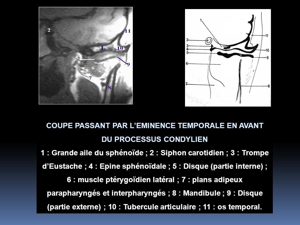 COUPE PASSANT PAR L'EMINENCE TEMPORALE EN AVANT DU PROCESSUS CONDYLIEN