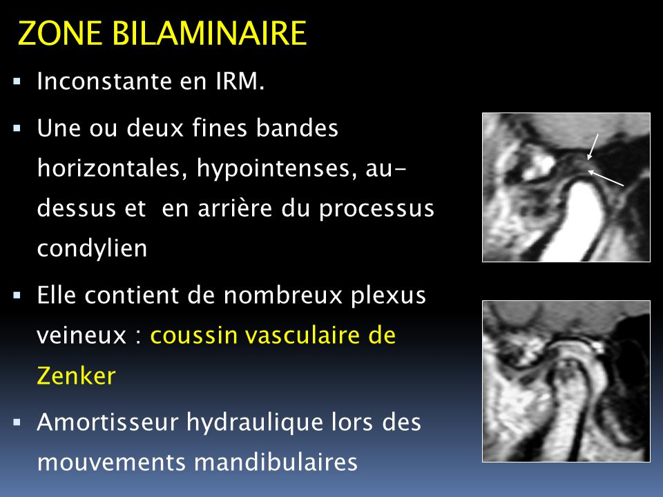 ZONE BILAMINAIRE Inconstante en IRM.