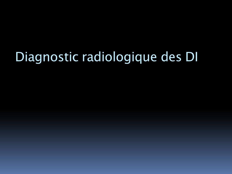 Diagnostic radiologique des DI