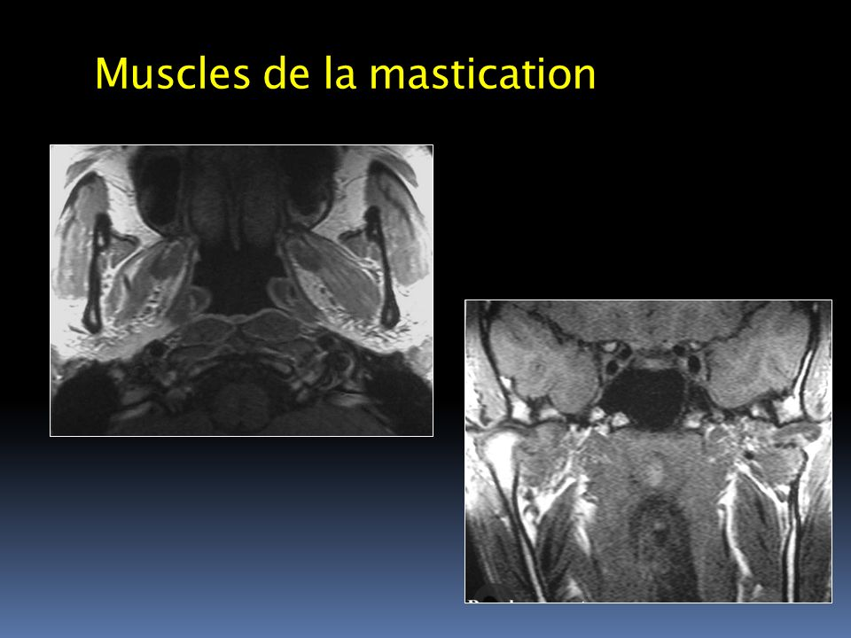 Muscles de la mastication