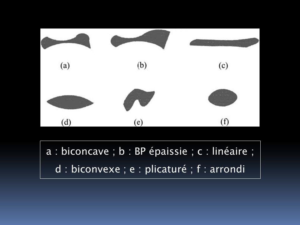 a : biconcave ; b : BP épaissie ; c : linéaire ; d : biconvexe ; e : plicaturé ; f : arrondi