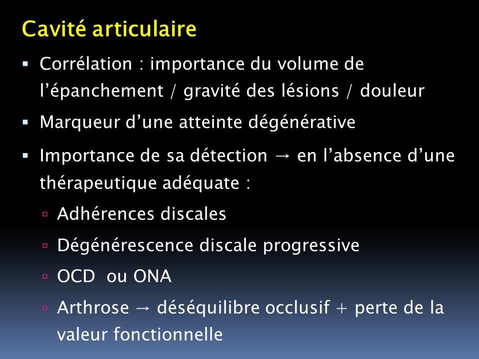 Cavité articulaire Corrélation : importance du volume de l'épanchement / gravité des lésions / douleur.