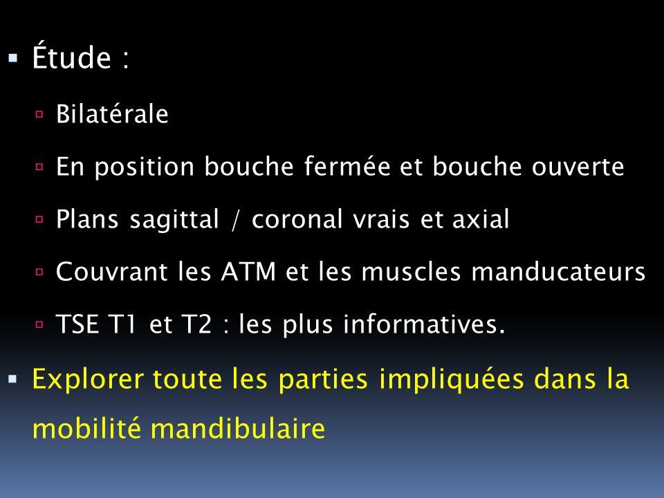 Étude : Bilatérale. En position bouche fermée et bouche ouverte. Plans sagittal / coronal vrais et axial.
