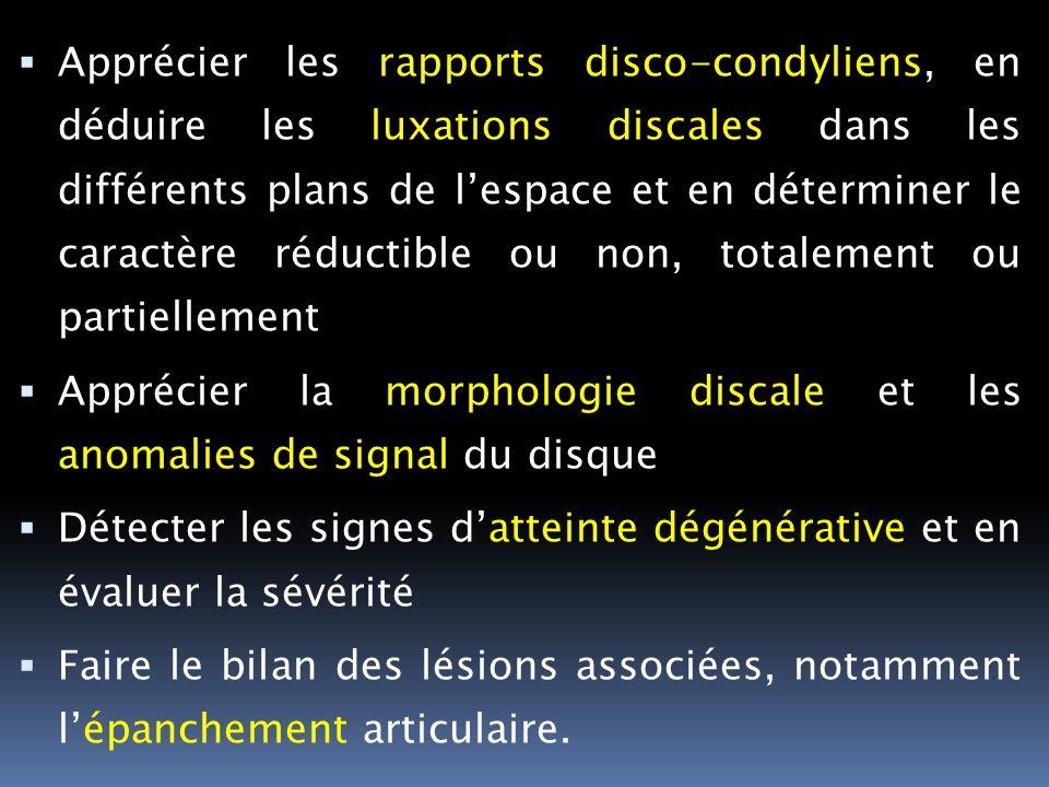 Apprécier les rapports disco-condyliens, en déduire les luxations discales dans les différents plans de l'espace et en déterminer le caractère réductible ou non, totalement ou partiellement