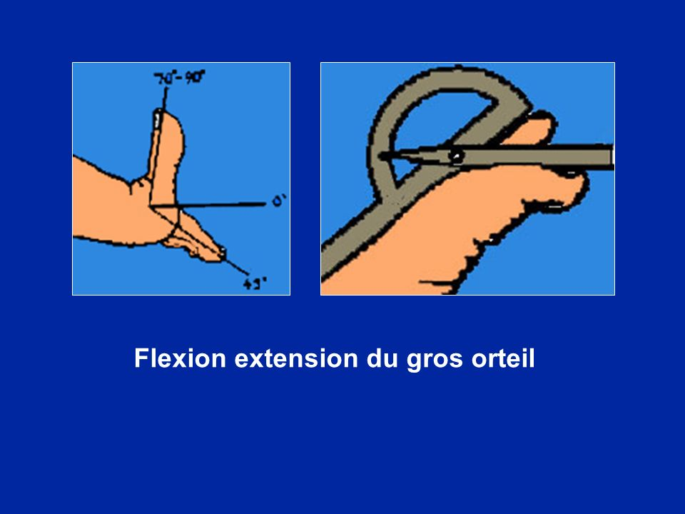 Flexion extension du gros orteil