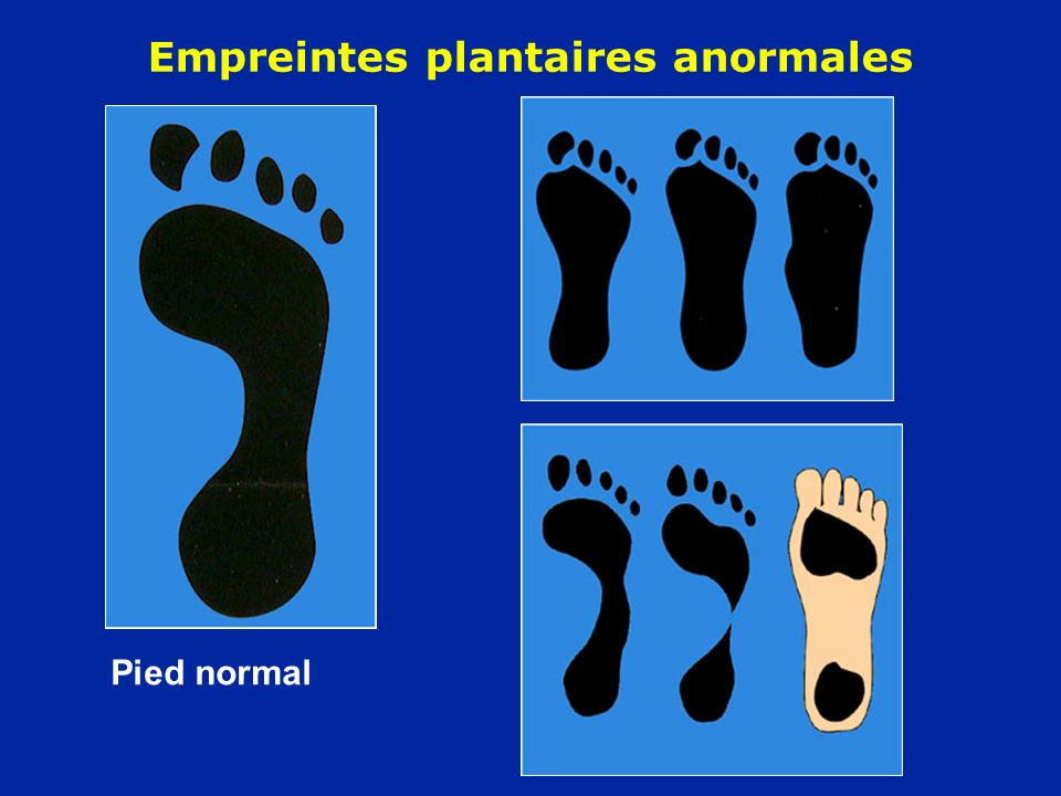 Empreintes plantaires anormales