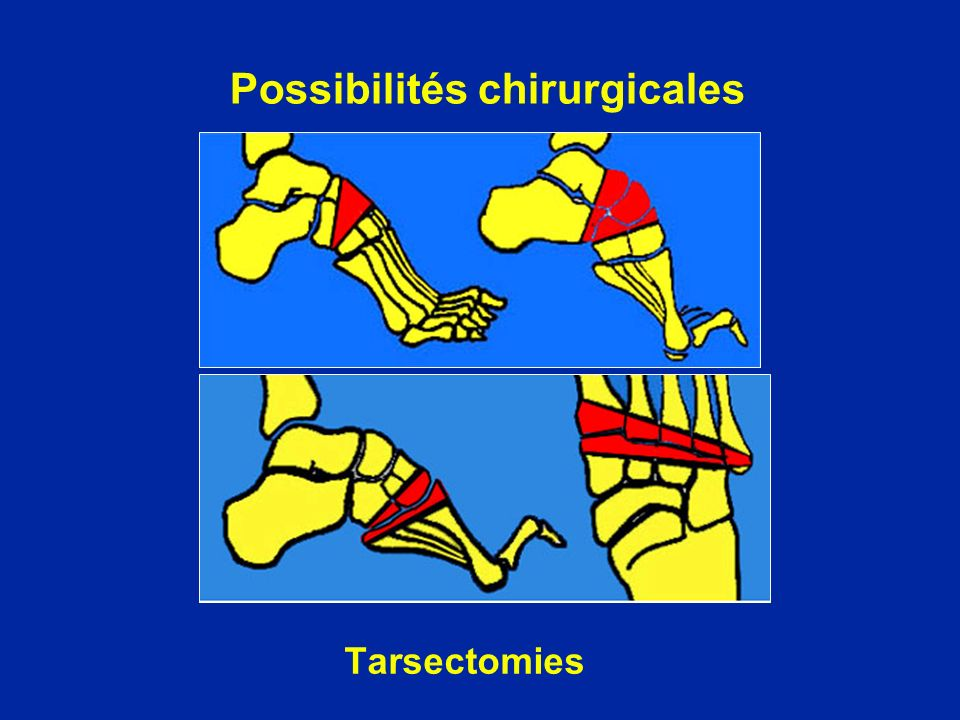 Possibilités chirurgicales