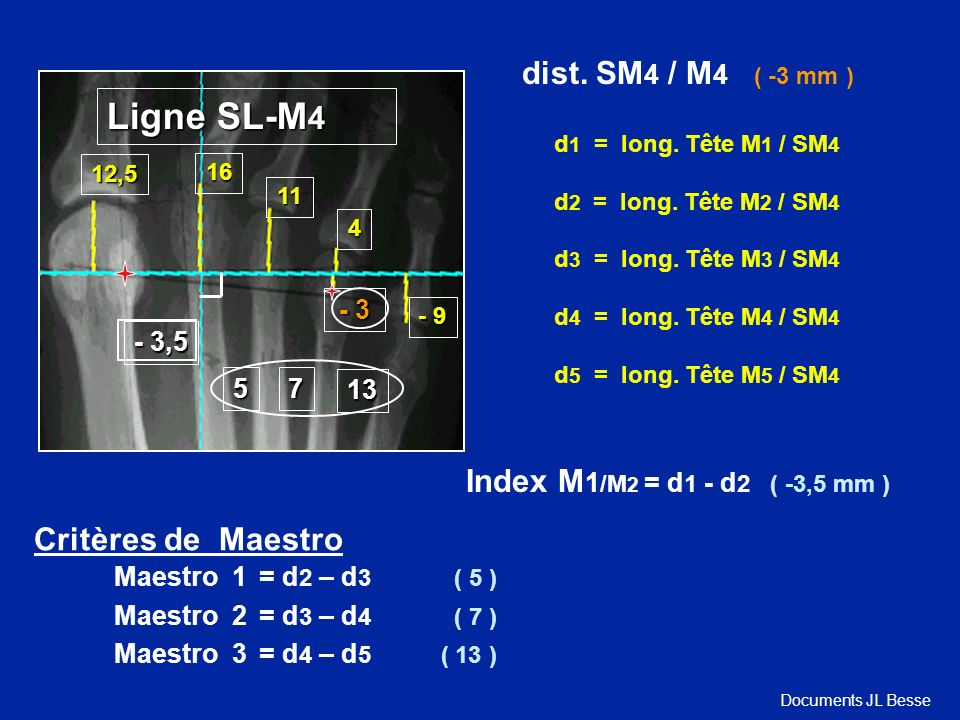 Ligne SL-M4 dist. SM4 / M4 ( -3 mm ) Index M1/M2 = d1 - d2 ( -3,5 mm )