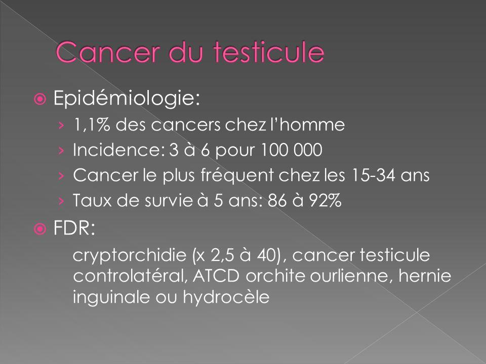 Cancer du testicule Epidémiologie: FDR: 1,1% des cancers chez l'homme