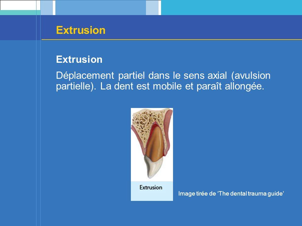 Extrusion Extrusion. Déplacement partiel dans le sens axial (avulsion partielle). La dent est mobile et paraît allongée.
